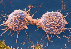 体育锻炼能够阻止某些癌细胞的生长和扩散